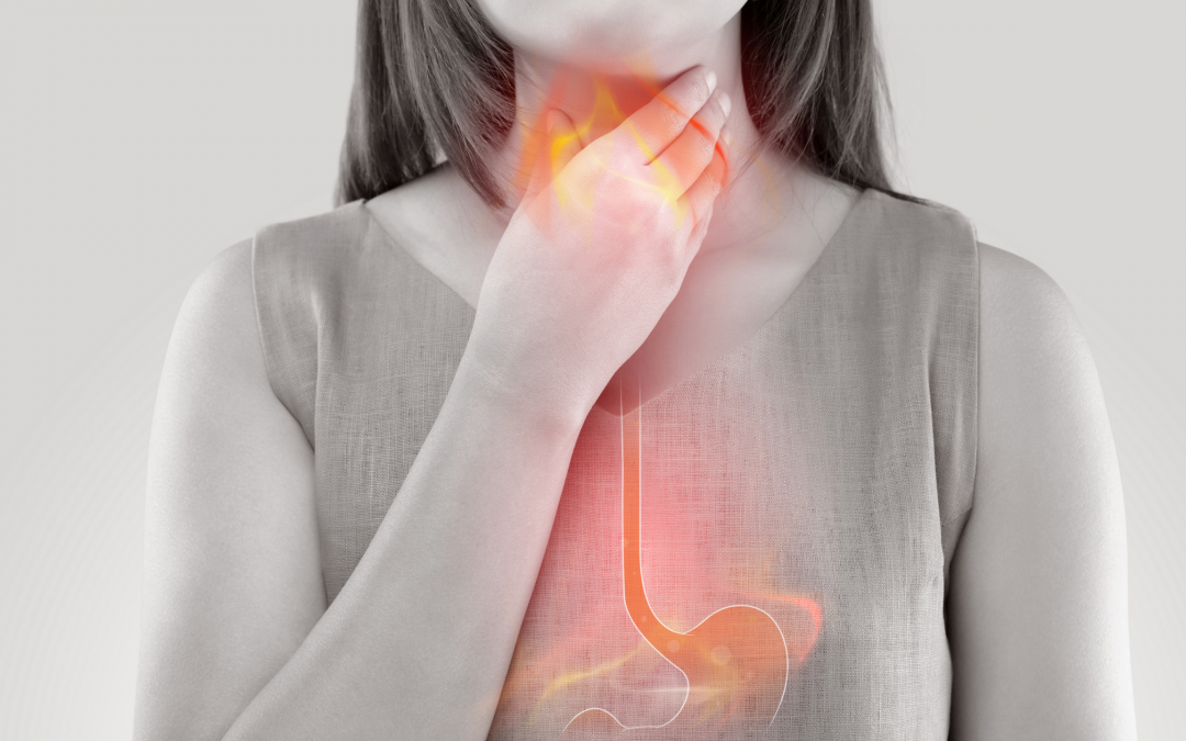 What You Need to Know About Acid Reflux